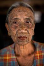 Chin Woman